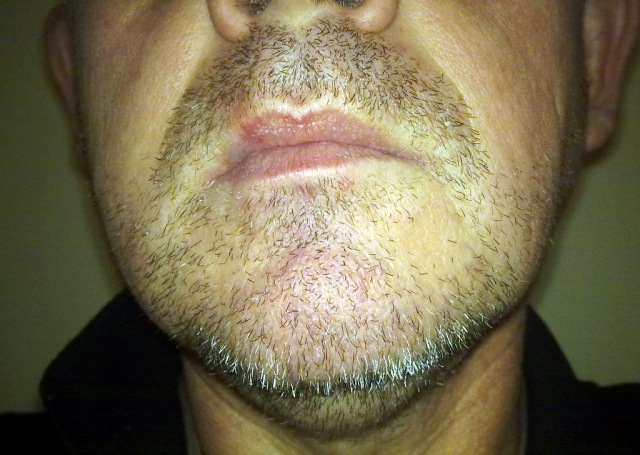 I could never participate in Movember. This is a six day growth.