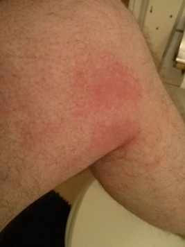 Cold Weather Hives - Cold Urticaria